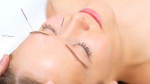 la acupuntura facial