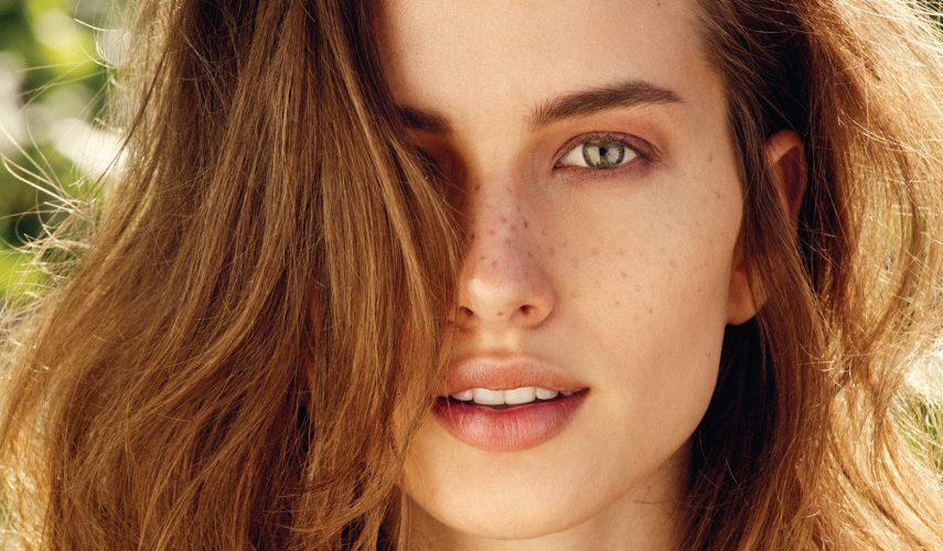 Manchas en la piel - The Beauty Concept