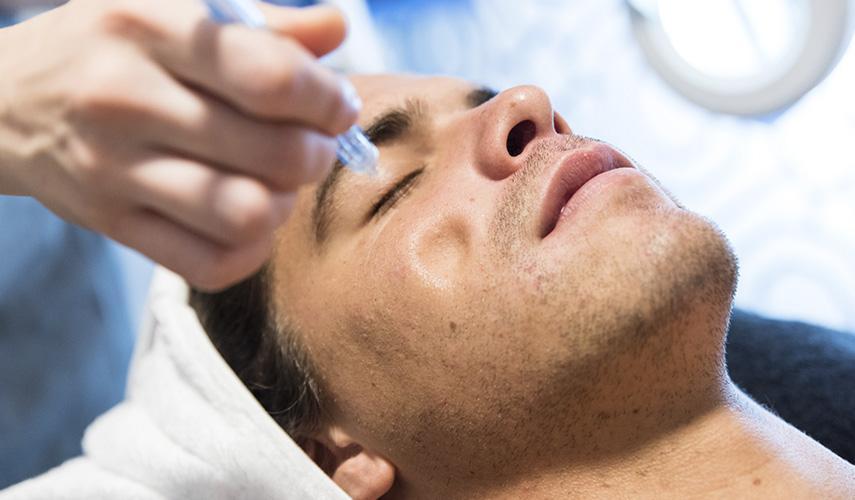 Prever y tratar el acné - The Beauty Concept