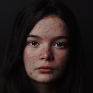 Rosácea_facial