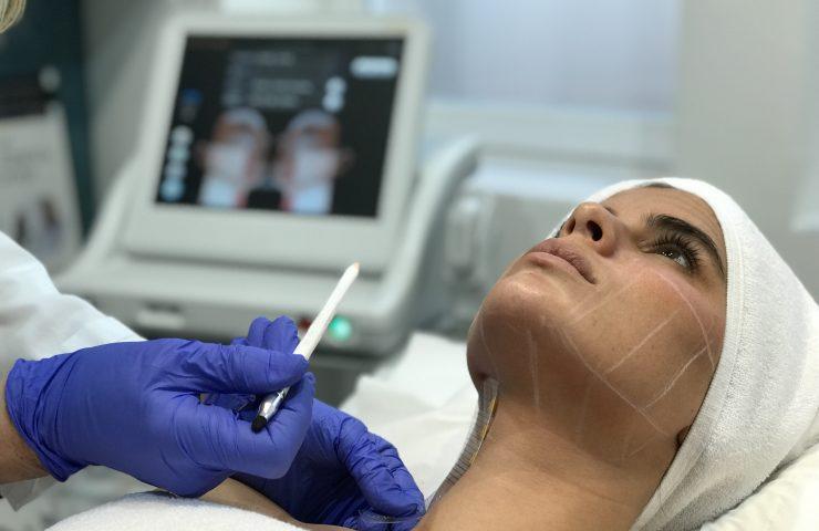 tratamiento ultherapy TBC