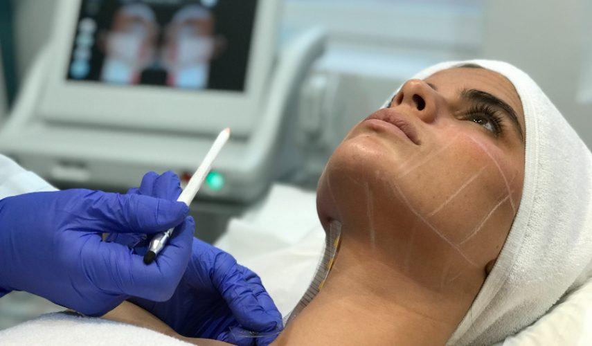 Ultherapy + ácido hialurónico, la combinación perfecta para recuperar volúmenes y combatir la flacidez del rostro