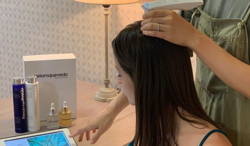 Reduce la caída de pelo con el tratamiento TBC