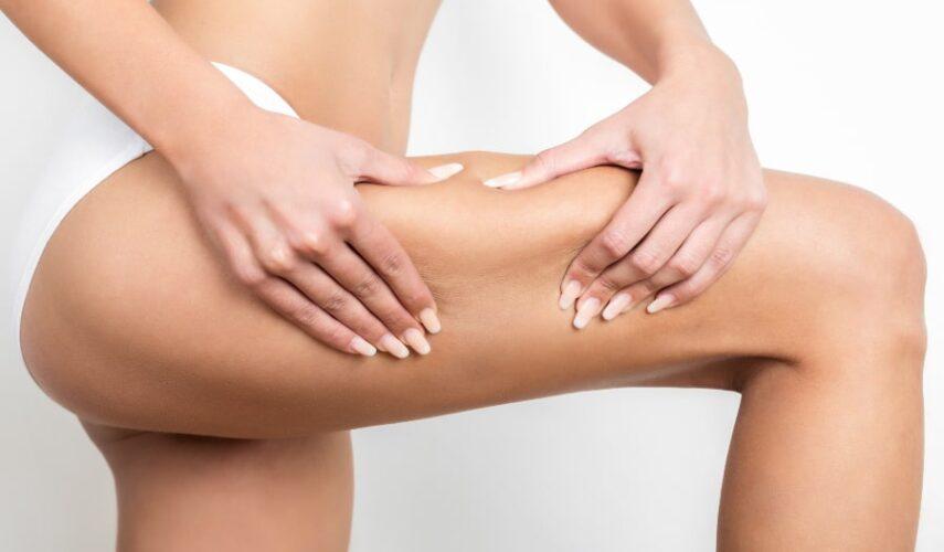 Combate la celulitis con los mejores tratamientos